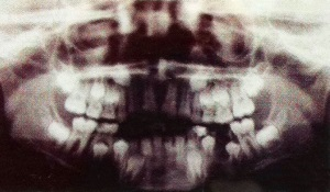 panoramic X-ray of a child ages 10+ showing adult teeth growing in