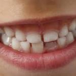 Injuries to primary teeth