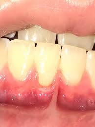 Red Gums in children ages 10+ can be due to hormones