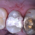 fillings for child teeth children ages 2-5