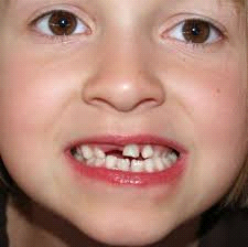 child loosing teeth children ages 2-5