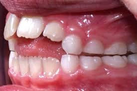 thumb sucking affects teeth